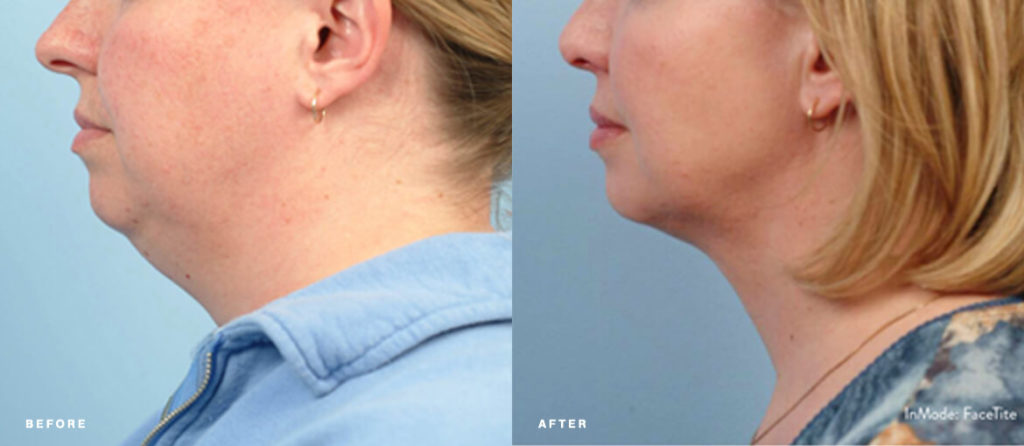 Facetite before and after picture of NuBody Concepts patient