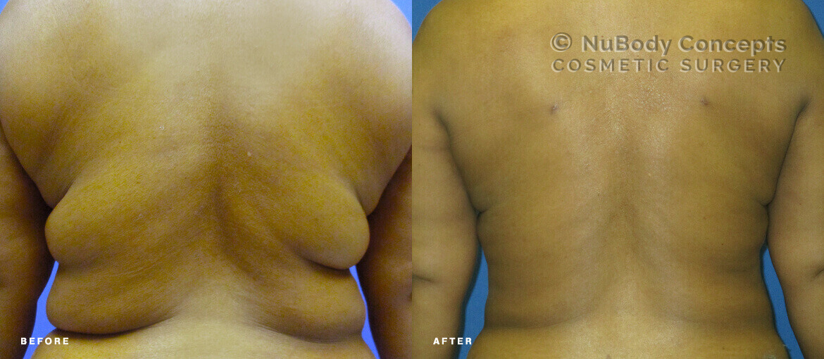 Liposuction before and after picture of NuBody Concepts patient