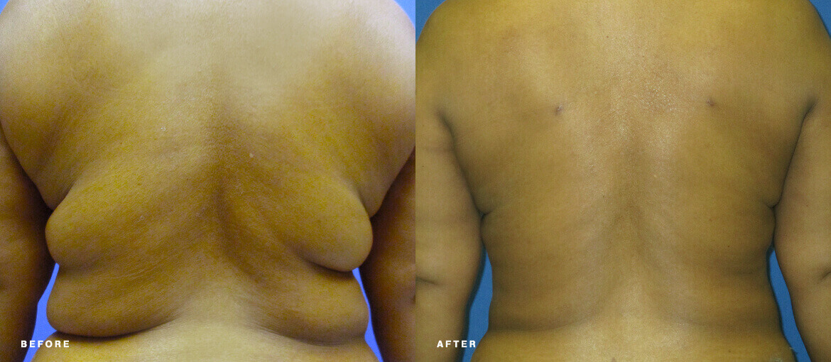 Aqualipo Liposuction before and after picture of NuBody Concepts patient