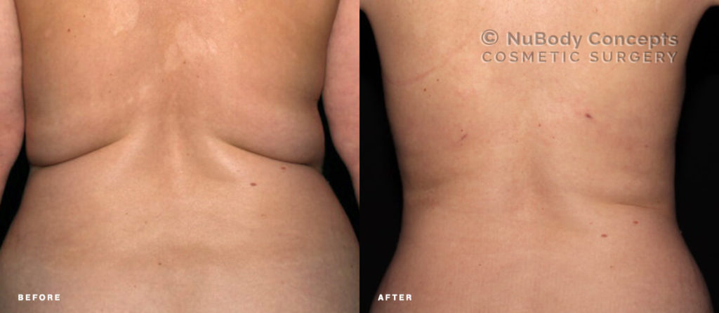 BodyTite before and after picture of NuBody Concepts patient
