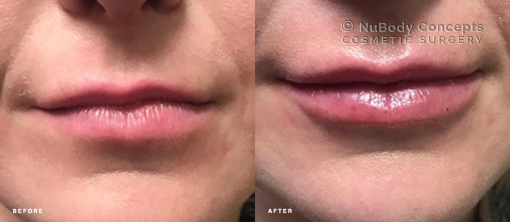 Dermal fillers before and after picture of NuBody Concepts patient