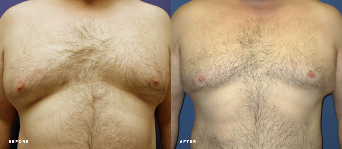 Male breast reduction before and after picture of NuBody Concepts patient