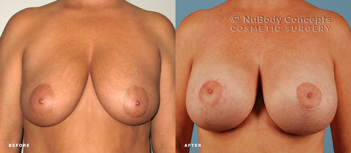 Breast lift w/ saline implants before and after picture of NuBody Concepts patient