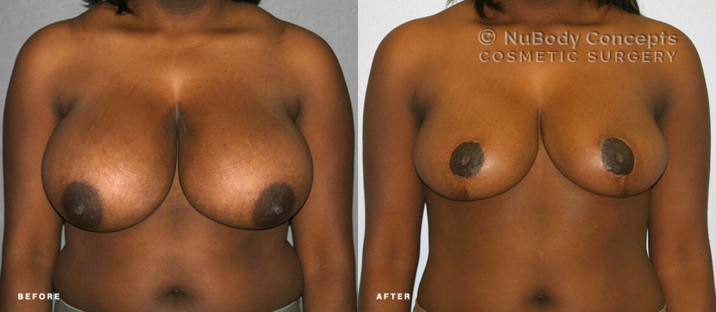 Breast reduction before and after picture of NuBody Concepts patient