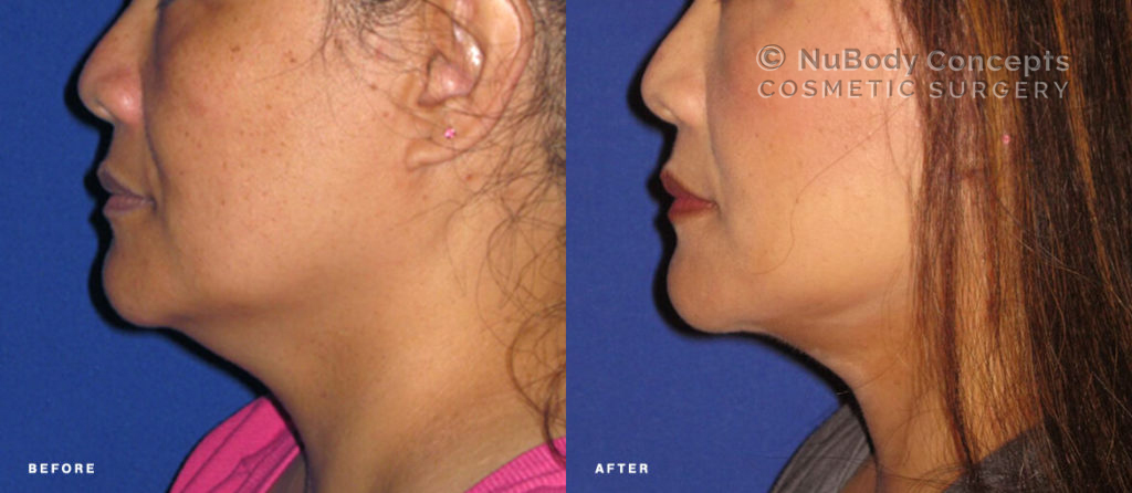 Facelift before and after picture of NuBody Concepts patient