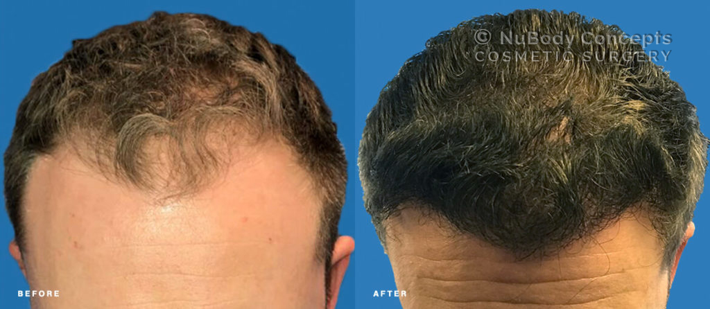 NuBody Concepts Hair Restoration Before & After