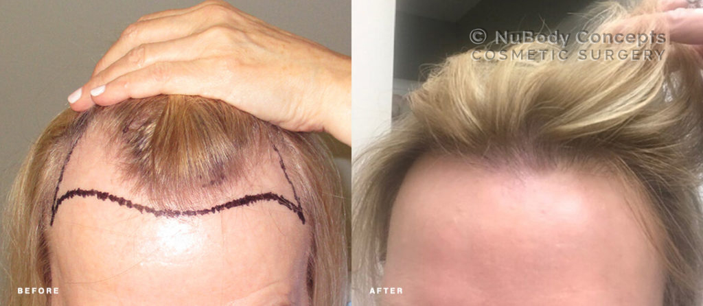 Female NuBody Concepts Hair Restoration Before & After