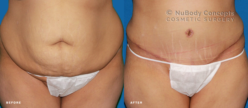 Tummy tuck before and after picture of NuBody Concepts patient