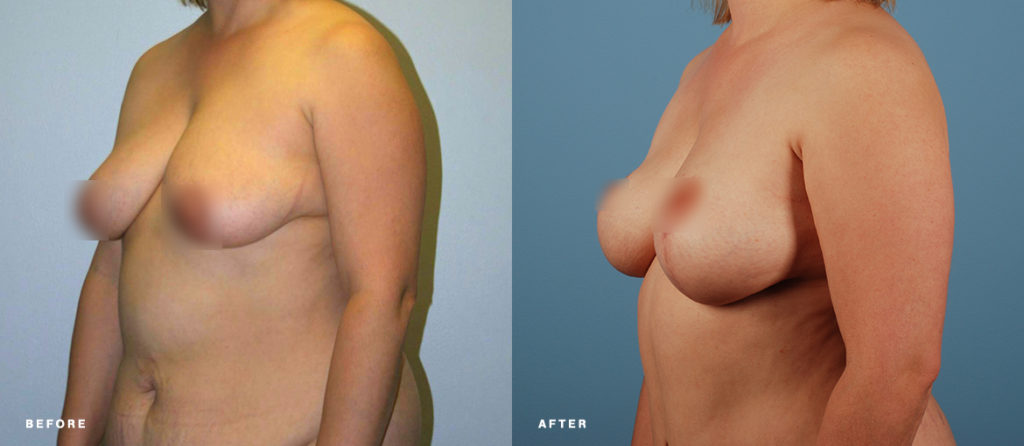 Patient with auto-augmentation breast lift  before and after procedure