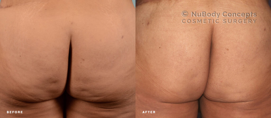 Patient with cellulite on buttocks before and after BodyTite treatment at NuBody Concepts