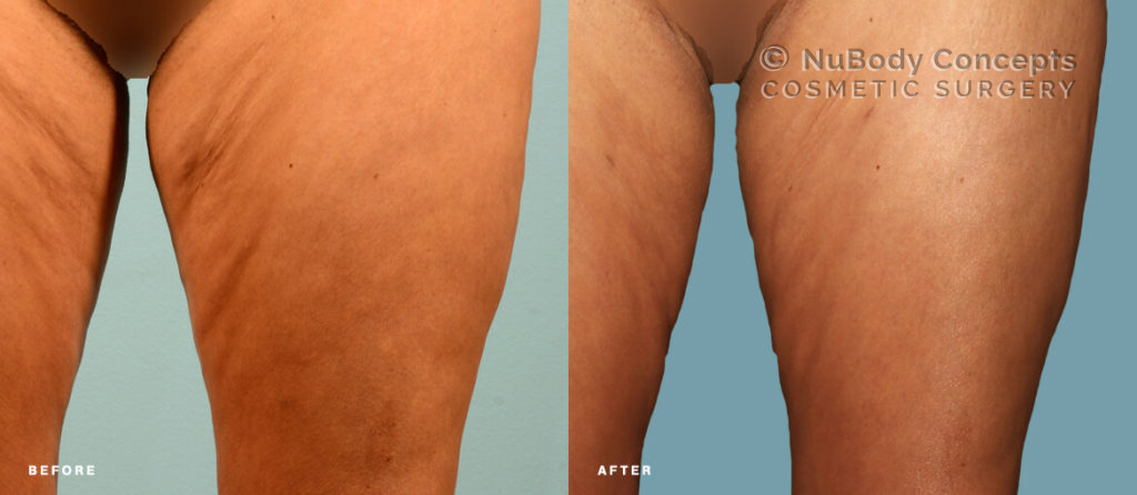 Patient with cellulite on thighs before and after BodyTite treatment at NuBody Concepts