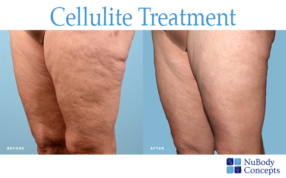NuBody Concepts Nashville cellulite reduction before and after