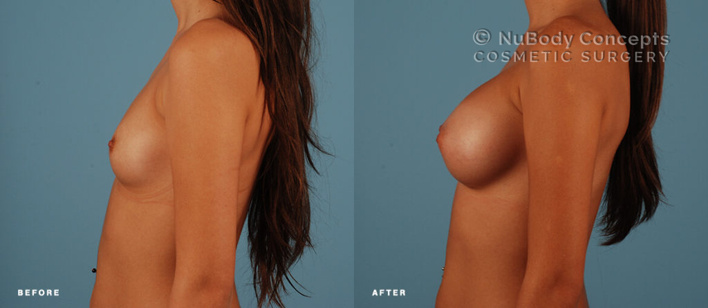 Breast implants silicone before and after picture of NuBody Concepts patient
