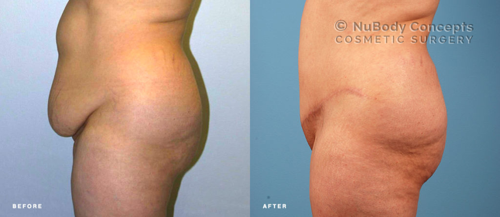 Mommy makeover before and after picture of NuBody Concepts patient
