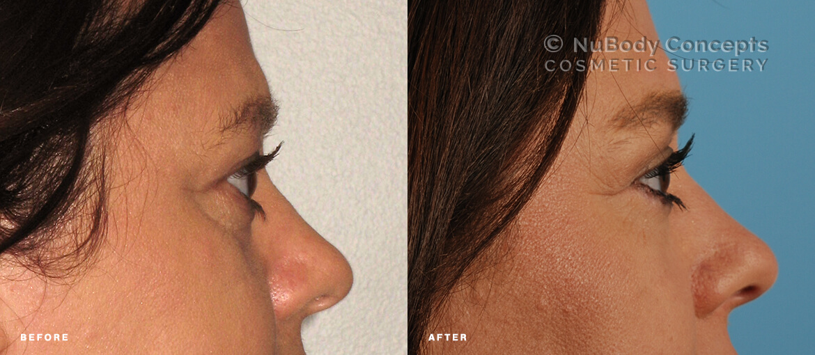 Lower and upper eyelid surgery before and after picture of NuBody Concepts patient