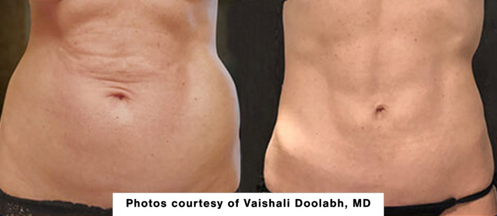 Renuvion skin tightening before and after picture - abdomen