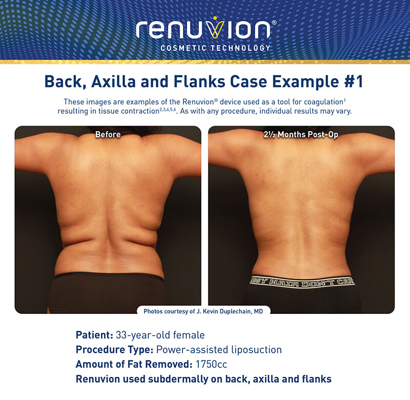Renuvion skin tightening before and after picture - back