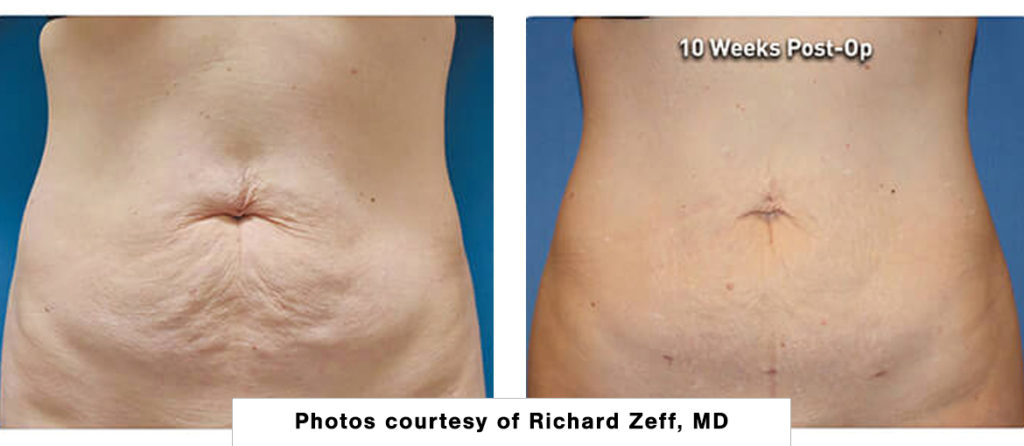 patient results of abdomen after liposuction with Renuvion skin tightening